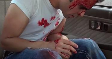 Κοινωνικό πείραμα:Τι θα έκανες αν έβλεπες κάποιον να αιμορραγεί; (Vid)