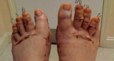 Γυναίκες κόβουν τα δάχτυλα των ποδιών τους για να φορούν πέδιλα