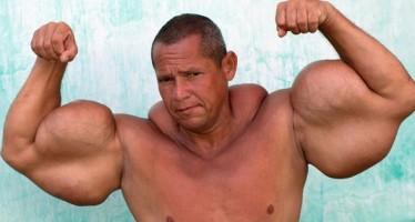 Οι 10 πιο σοκαριστικές συνέπειες της κατάχρησης στεροειδών!