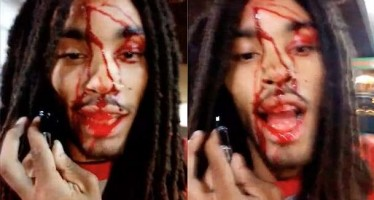 Τον πυροβόλησαν στο κεφάλι και τραβούσε βίντεο!