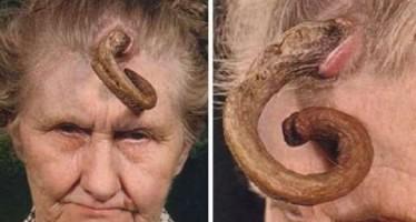 Οι 13 πιο παράξενες παθολογικές ασθένειες!