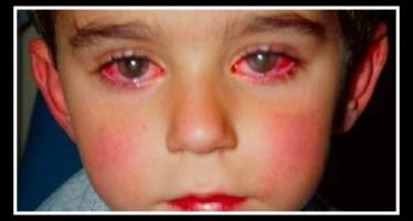 14χρονος έχασε το 25% της όρασης του επειδή έπαιζε με laser!