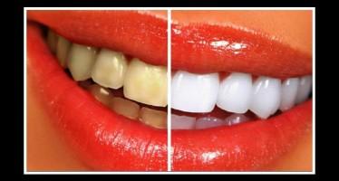 6 Τρόποι να λευκάνεις τα δόντια σου στο σπίτι!