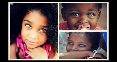 18 Παιδιά με εντυπωσιακά μάτια, απ όλο τον κόσμο!
