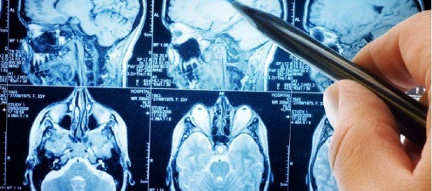 Έρευνα δείχνει τι ζημιά κάνει η ζάχαρη στον εγκέφαλο μας!