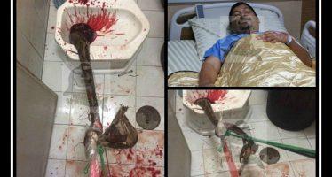 Πύθωνας δάγκωσε το πέoς ενός 38χρονου στην τουαλέτα!