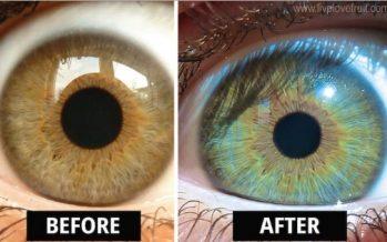 Κοπέλα ισχυρίζεται ότι άλλαξε χρώμα ματιών μ' αυτήν την διατροφή!