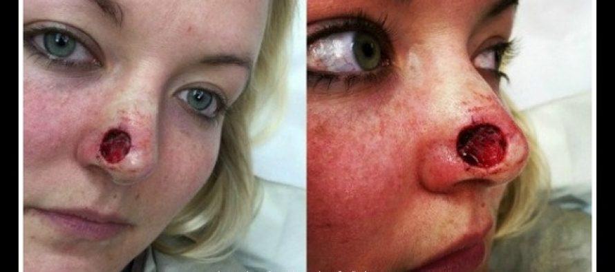 Έκανε σολάριουμ για χρόνια και της δημιούργησε τρύπα στη μύτη!