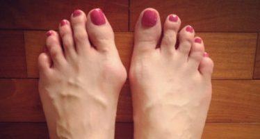 5 Προβλήματα που προκαλούν τα λάθος παπούτσια!