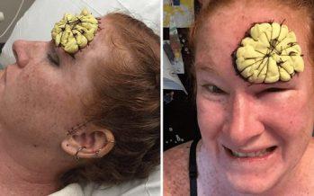 39χρονη μητέρα προειδοποιεί για τον καρκίνο του δέρματος!