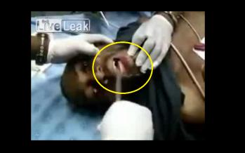 VIDEO: Γιατρός αφαιρεί τηλέφωνο από το λαιμό ενός ανθρώπου