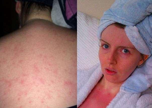allergika eksanthimata