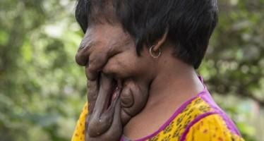 Η 21χρονη από την Ινδία που δεν έχει «πρόσωπο»!
