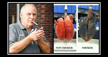 Πως να καθαρίσεις τους πνεύμονές σου αν είσαι καπνιστής!