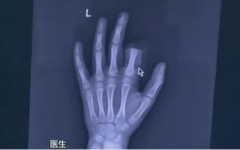 11χρονος έκοψε το δάχτυλο του επειδή ήταν κολλημένος με το…