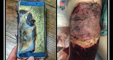 Έκρηξη από Samsung προκάλεσε σοβαρούς τραυματισμούς!