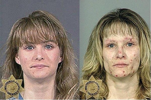 sumptomata narkotika derma