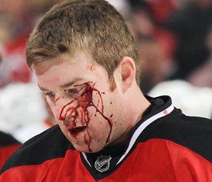 Hockey-xtipima-sto-kefali-aimata