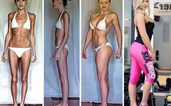 20 Σκληρές εικόνες ατόμων που νίκησαν την ανορεξία!