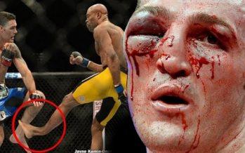 Οι χειρότεροι τραυματισμοί στην ιστορία του MMA!