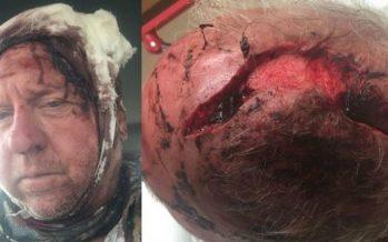 Άντρας έκανε 90 ράμματα στο κεφάλι έπειτα από μάχη με αρκούδα γκρίζλι!