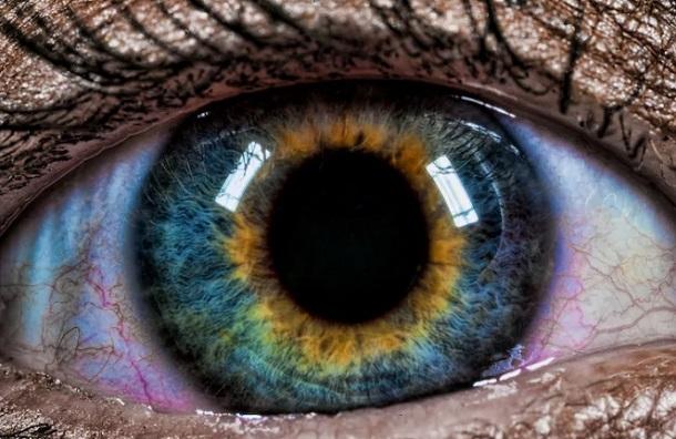 eteroxromia sta matia eikones
