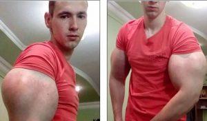 Νεαρός ρισκάρει τη ζωή του «φουσκώνοντας» τα μπράτσα του με χημικά