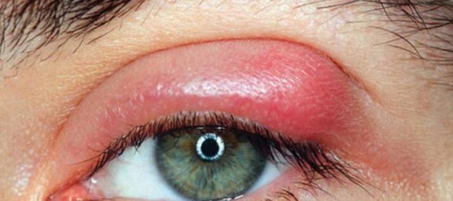 3 Τρόποι που μεταφέρεις εκατομμύρια βακτηρίδια στα μάτια σου!