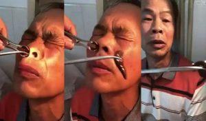 Γιατρός έβγαλε βδέλλα από τη μύτη ενός 51χρονου!